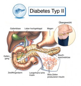 Diabetes Typ II Zink