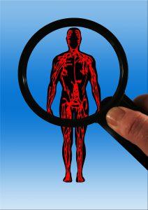 gefaesse arteriosklerose