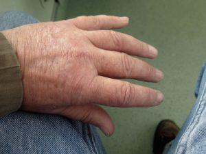 Pinienrindenextrakt bei arthrose arthritis