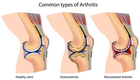 Arten von Arthrose und Arthritis
