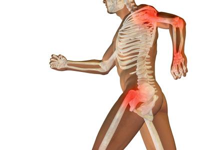 Chondroitin und Arthrose: wirksam