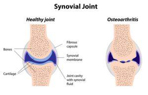 chondroitin gelenke wirkung