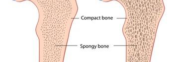 Osteoporose Vitamin D