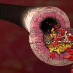 Heidelbeere Arteriosklerose