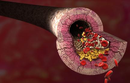 Arginin Arteriosklerose