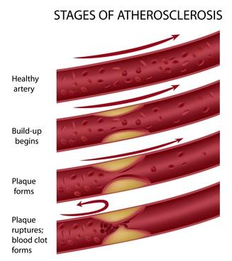 Stadien der Arteriosklerose und Arginin