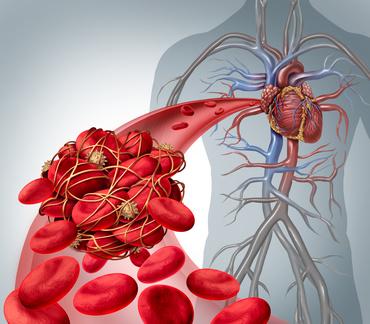L-Arginin und Bluthochdruck