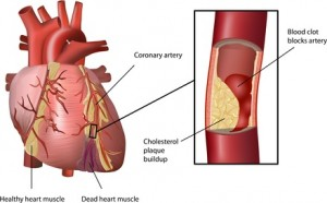 Herzinfarkt mit Folsäure vorbeugen